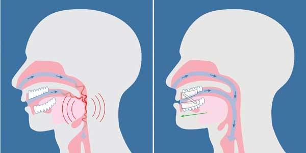 Orthèses dentaires anti apnée du sommeil